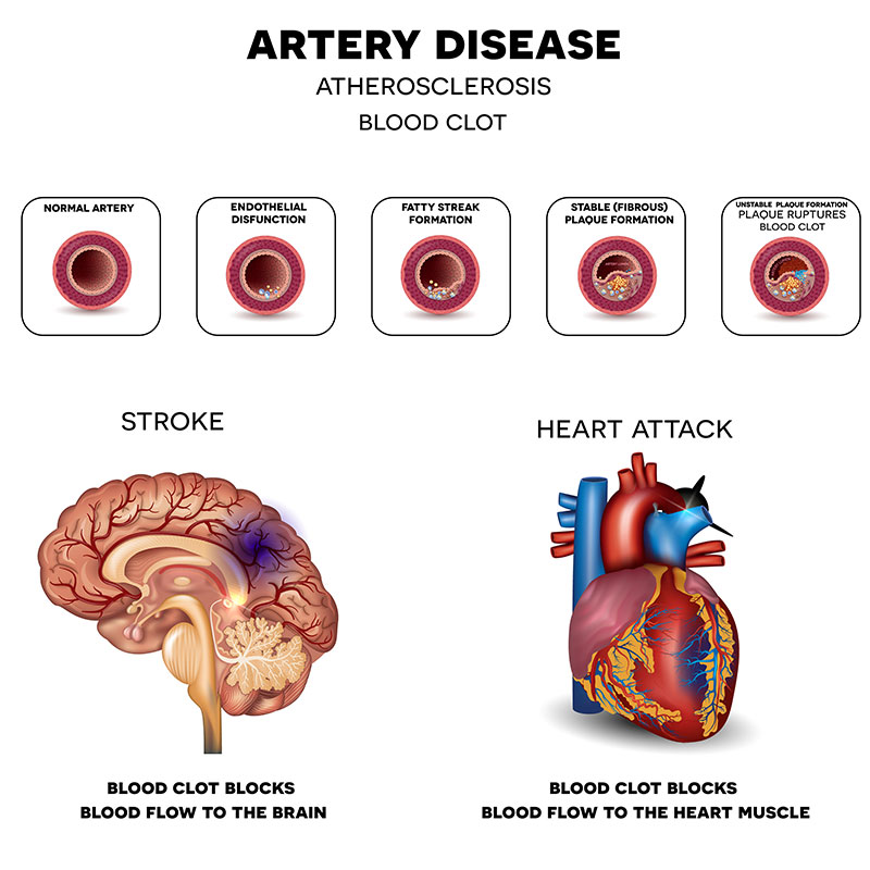 New York NY Artery Disease Treatment