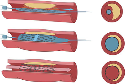 Vascular Stenting