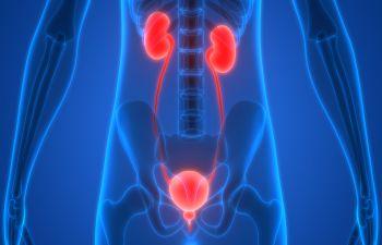 Kidneys New York, NY